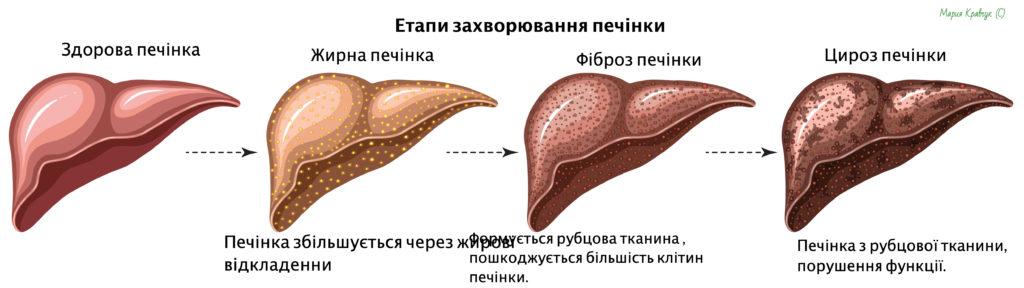детокс печінки