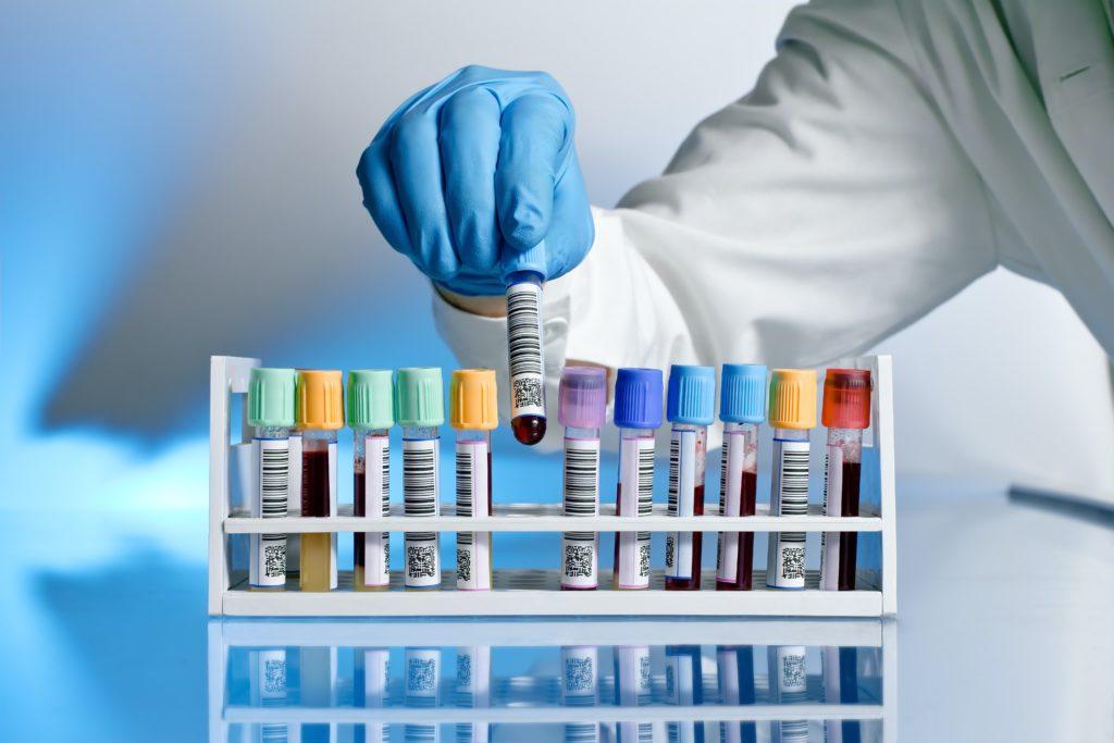 аналіз на гормони