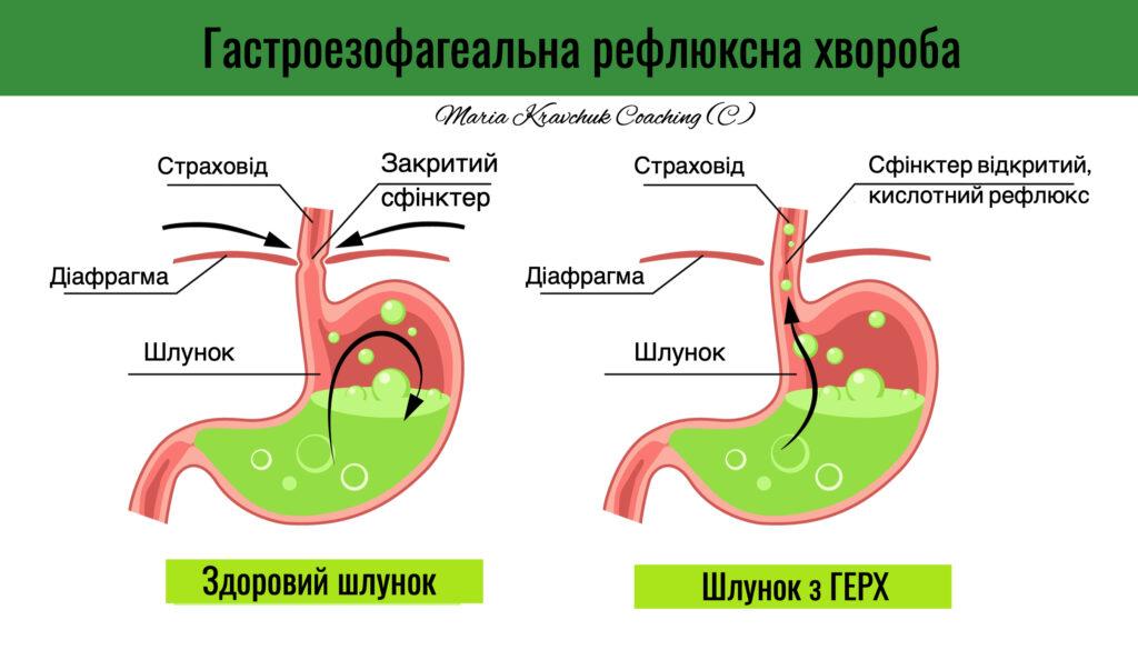 кислотний рефлюкс